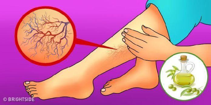 természetes gyógymódok a visszér kezelésére
