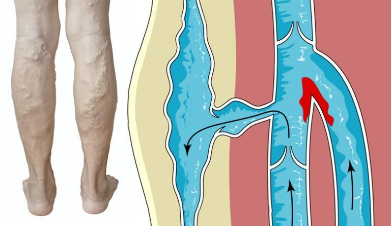 a lábak visszérfeleslege túlsúlyos)