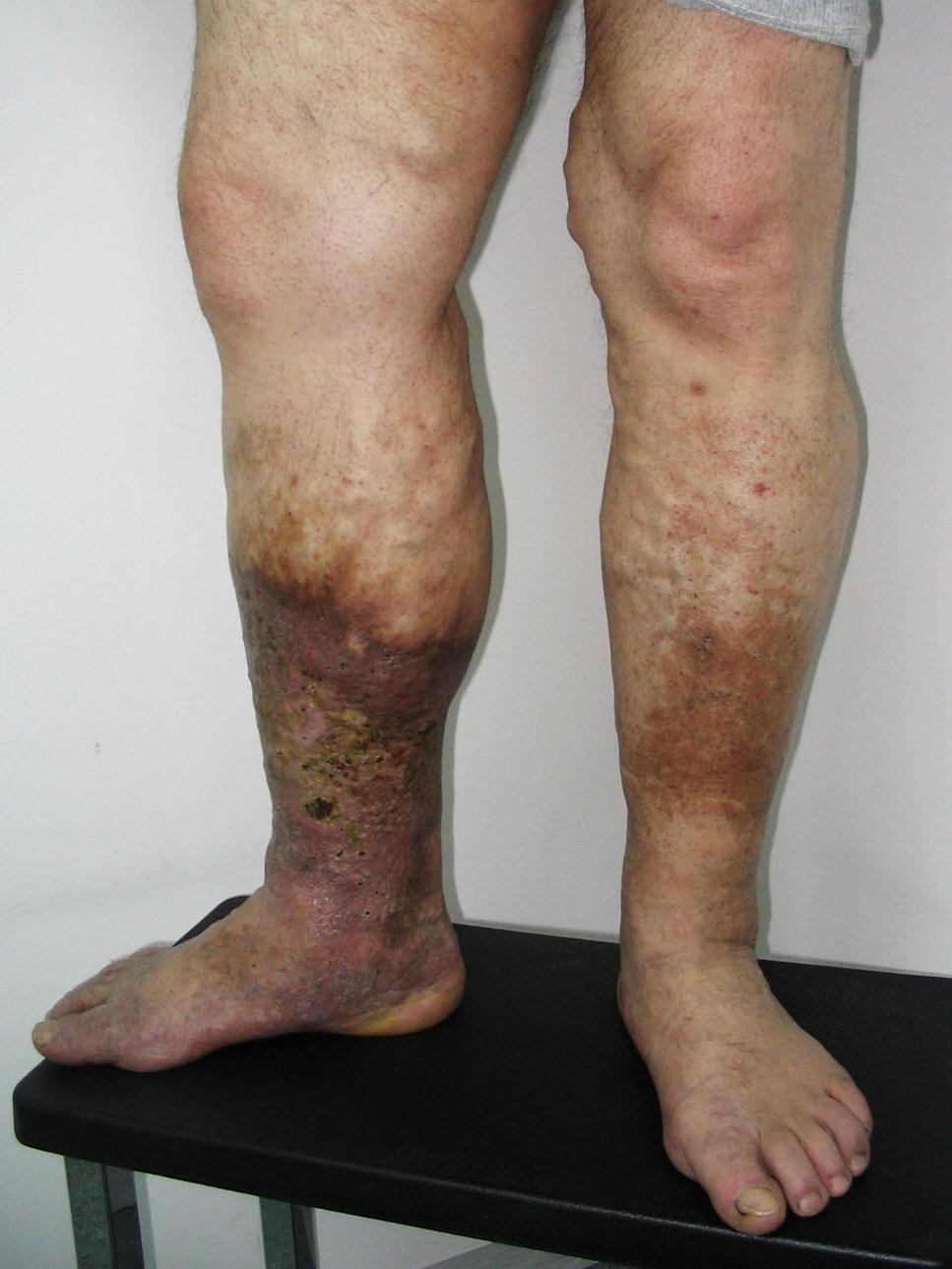fotó a lábakon található visszeres fekélyekről