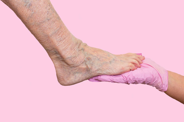 varikózus vénákat okoz a nőknél a lábakon