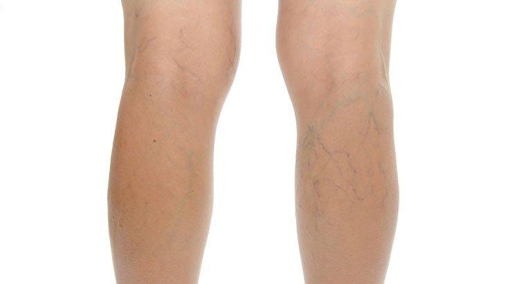 az alsó végtagok hálói visszerek milyen kenőcsök segítenek a lábak varikózisában