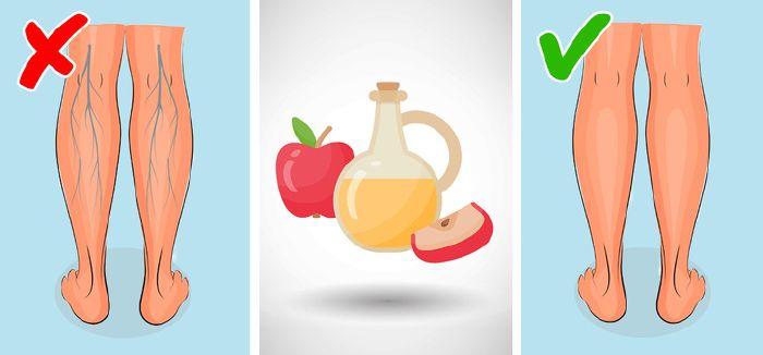 az almaecet hatása a visszérre golfméret a visszérektől