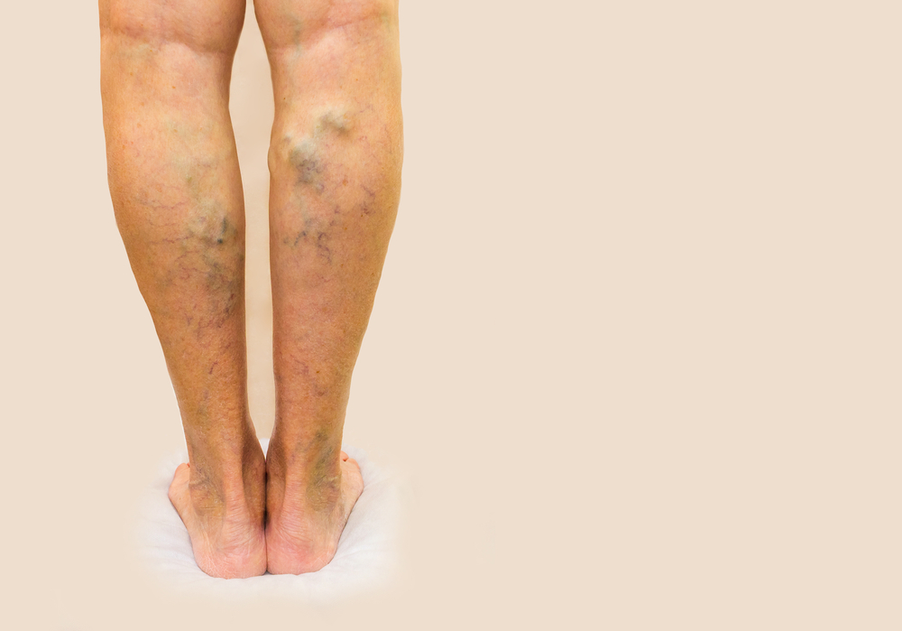 gyógymódok a lábak visszér ellen)