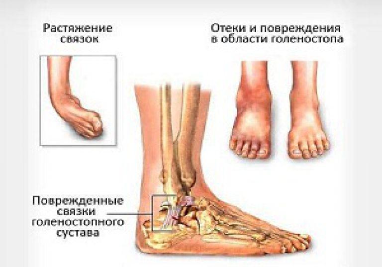 modern módszerek a lábak varikózisának kezelésére