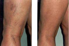 Puffadt, vizes lábak: ez nyiroködéma - EgészségKalauz