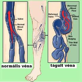 a láb visszértágulatának kezelése)