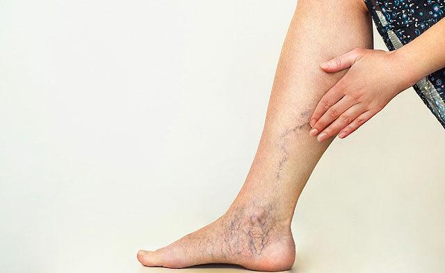 a lábak visszér megduzzad