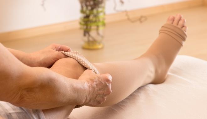 elasztikus kötés felhelyezése visszerek esetén)