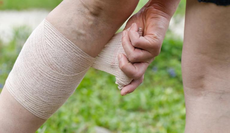 visszérbetegség nehézség a lábakon ödéma)