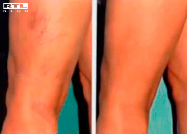 gyógymódok a lábak visszér ellen