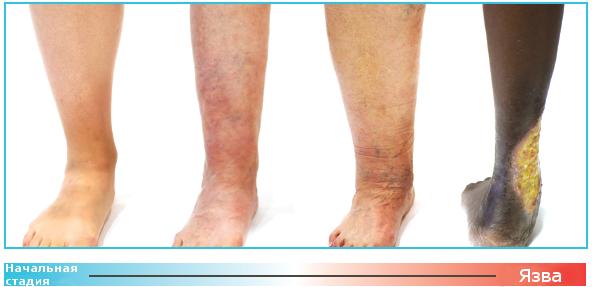 hogyan lehet megelőzni a varikózisos tromboflebitist