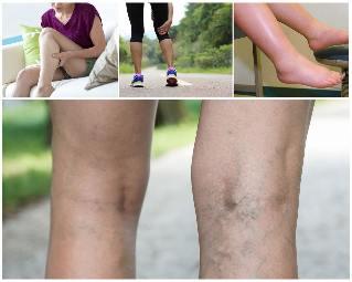 lábak húzza visszér kezelés