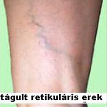 lábműtét visszér árak