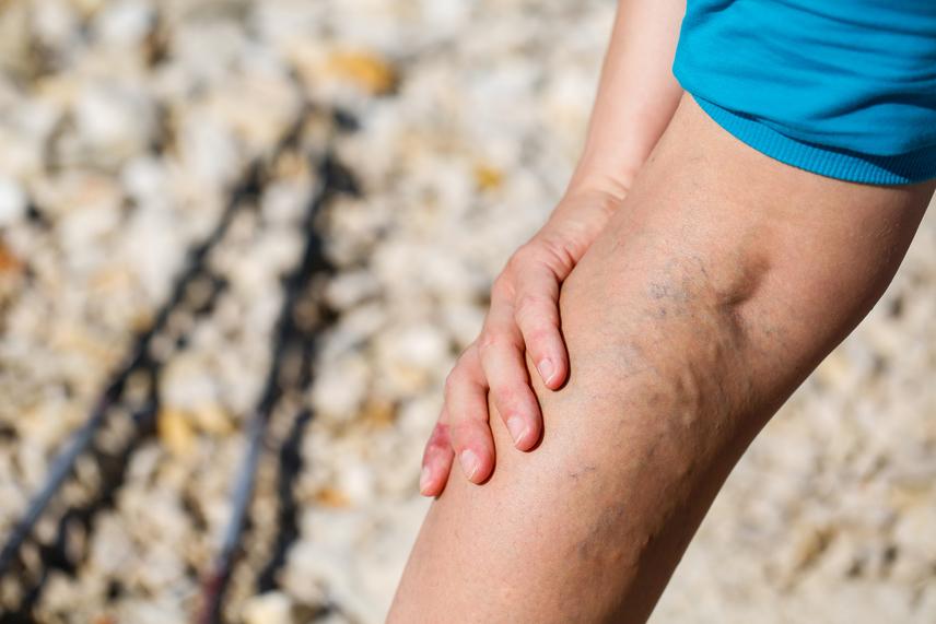álló munka hogyan lehet segíteni a lábakon a visszerek a kismedence visszeres terhes terhes