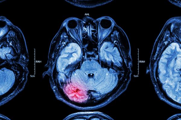 mit kell tenni, ha a varikózis elkezdődik)