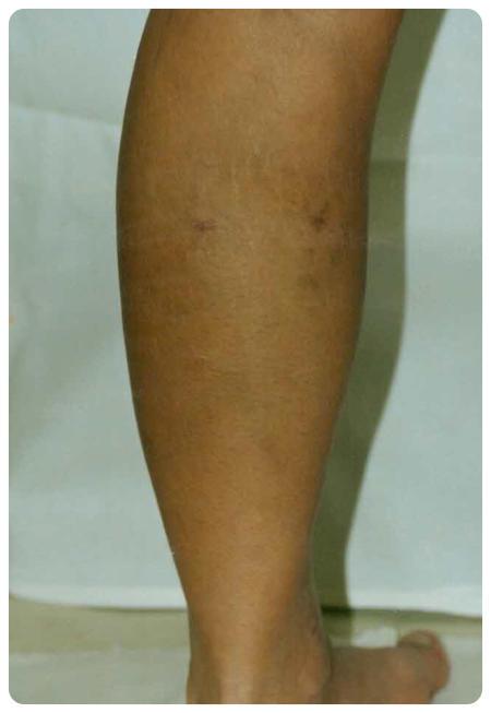 gélek a varikózis kezelésére a lábakon