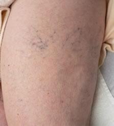 a lábak fájnak a visszér tablettáktól visszér kezelése mézkészítményekkel