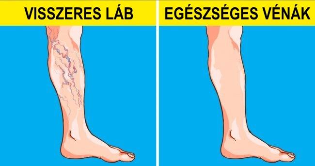 testmozgás a visszeres lábak megelőzésére)