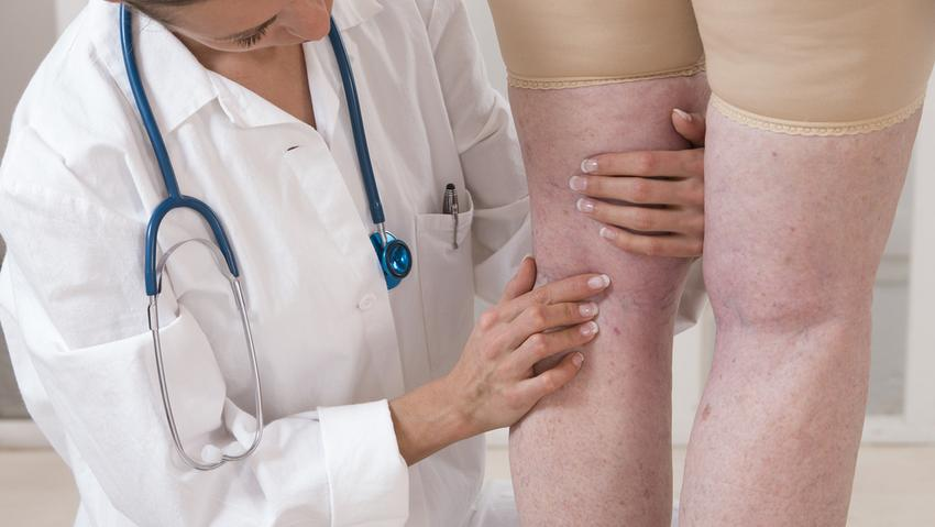 műtét visszerek a nyizsnyi tagilban