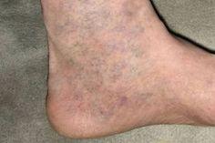 a visszér lelki okai vérömleny a lábakon, visszér fotó