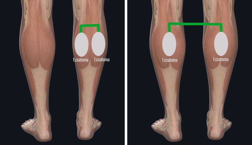 visszér kezdeti szakasz-kezelés ha a láb meg van dagadva a visszerektől