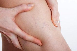 hogyan jelennek meg a fekélyek visszérrel a lábak súlyos visszérgyulladása