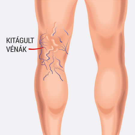 visszér visszahatása só a lábak duzzanata és visszeressége terhesség alatt