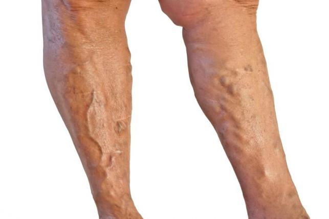 visszér fotó a lábakról