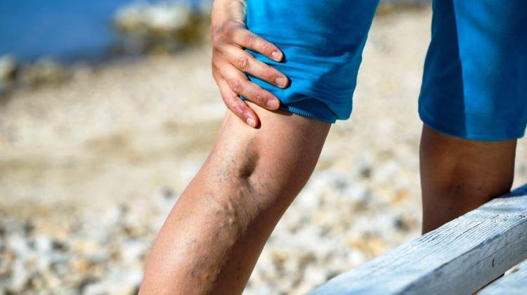mindez a visszér piócákkal történő kezeléséről osztályok a varikózisos lábakra