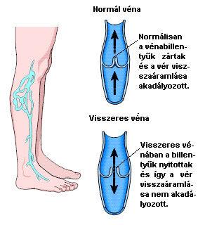 visszér és vénák különbség)