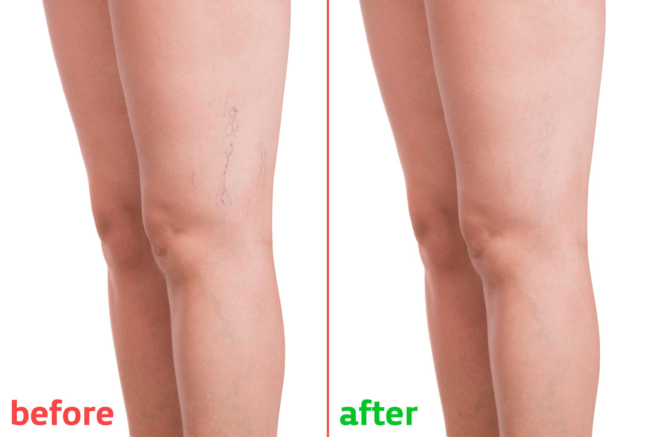 vitaminok visszerek és lábak mennyit viseljen rugalmas kötést a visszerek után