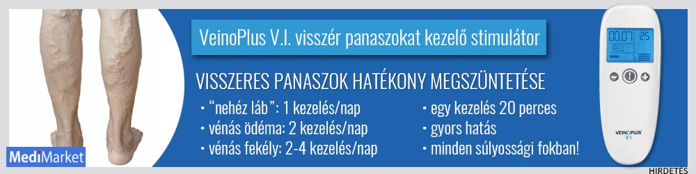 Krasnodar klinika varikozusok