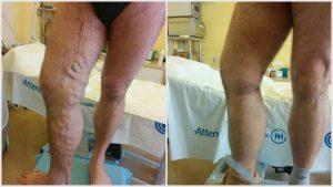 véraláfutás a visszér eltávolítását célzó műtét után