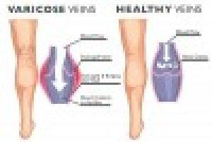 A véralvadásgátlók mellékhatása - HáziPatika