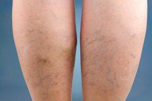 zokni visszeres betegek számára láb nyomásterápia visszér ellen