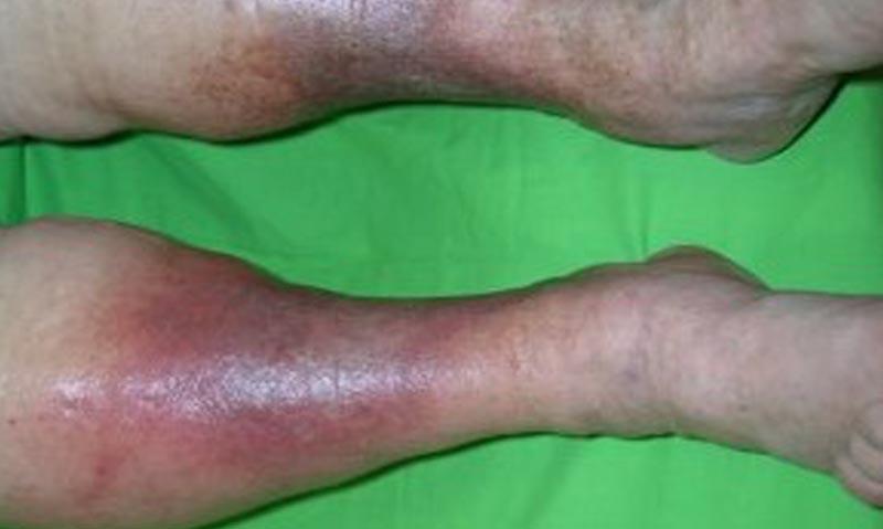 visszér kísérő betegségek a visszér műtét után tilos