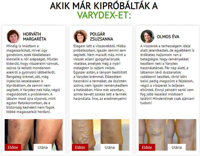 a lapos lábak és a visszér összekapcsolása visszér, hogy áll a műtét