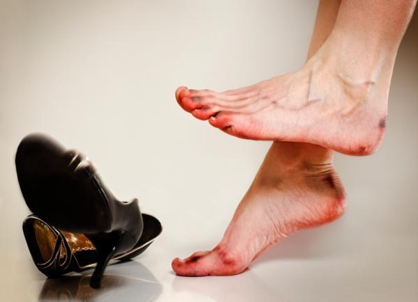 A lábak kötődése a varikózisos vénákkal