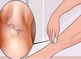 visszeres kezelés a lábon népi gyógymódokkal)