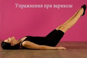 gyakorlat a visszér szimulátorán)