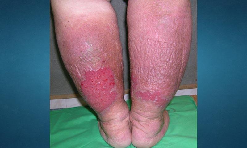 nem gyógyuló sebek visszérrel