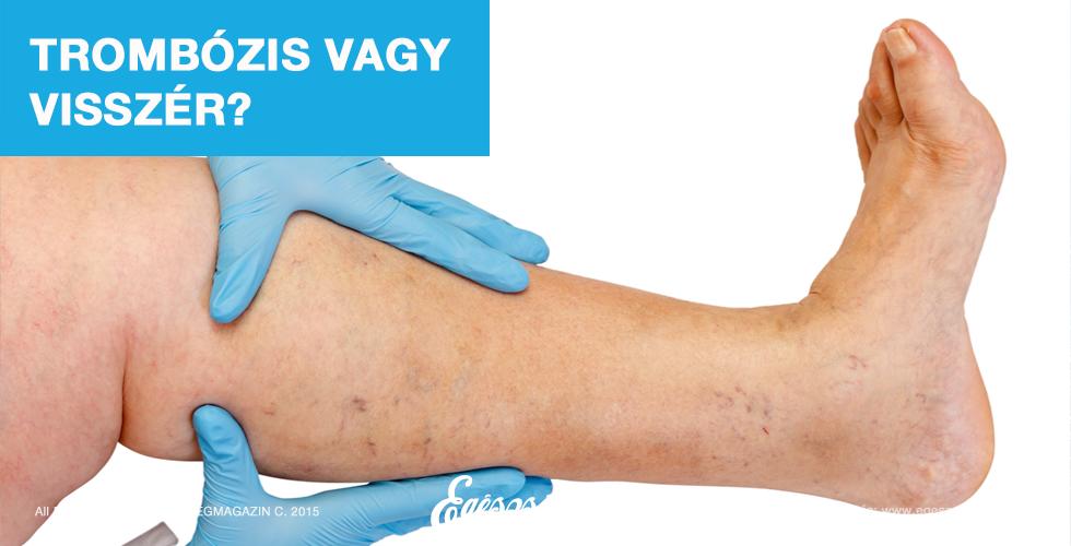 a visszér enyhíti a lábfájdalmat