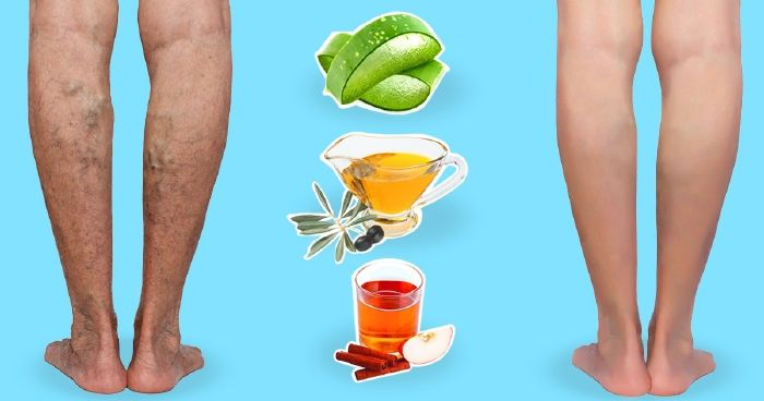 a lábakon lévő visszér kezelése jóddal)