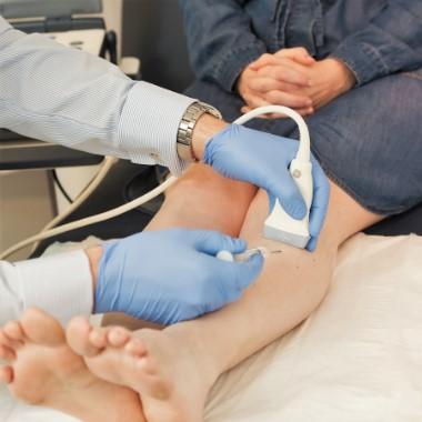 visszér kezelése Szevasztopol