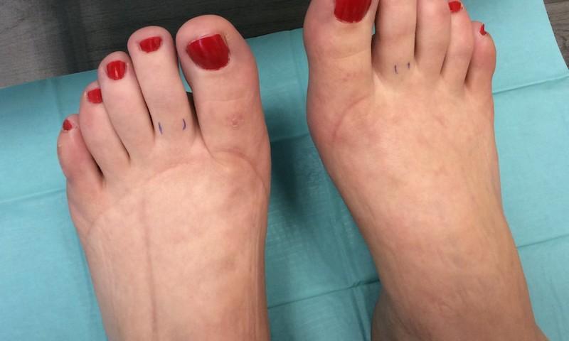 Varikozos erek, duzzadt lábak kezelése