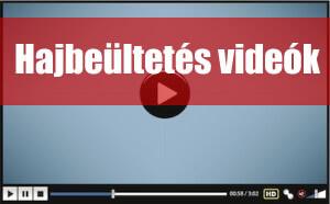 Videók - Szépsegéd