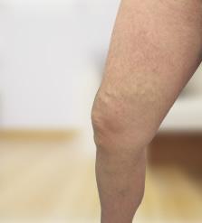 mit kell tenni, ha az embernek visszérbetegsége van foltok a lábakon visszérrel