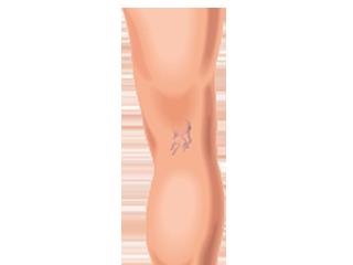 az alsó végtagok varikózisának megnyilvánulása