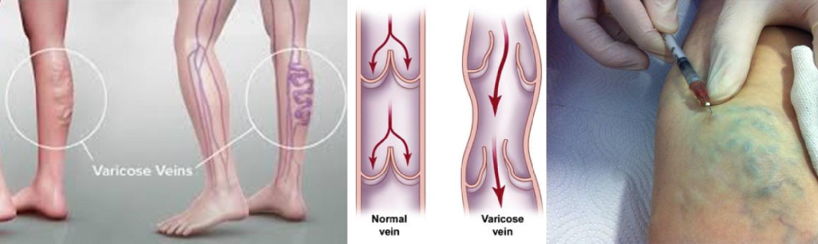 Lábszárfekély kezelése a Trombózis- és Hematológiai Központban
