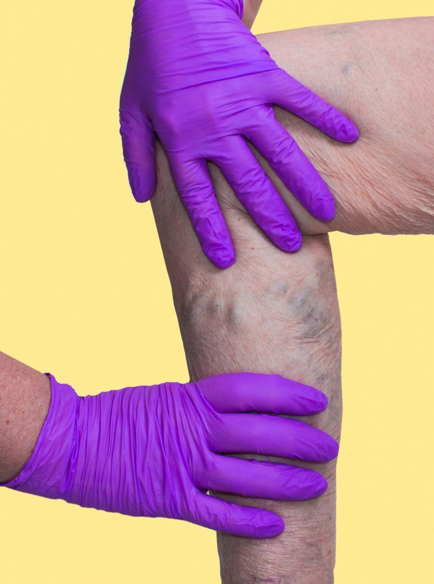 a lábak súlyos visszérgyulladása